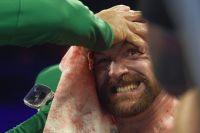 Катмен Фьюри рассказал, как ему удалось справиться с рассечением Тайсона в бою с Валлином