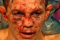 У Марата Балаева диагностировали переломы ноги и носа
