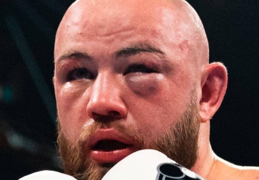 Адам Ковнацки получил тяжелую травму в реванше с Хелениусом