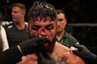 Медицинские отстранения участников турнира UFC Fight Night 156: Валентина Шевченко - Лиз Кармуш 2