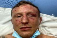 Джек Херманссон сообщил о многочисленных повреждениях после боя с Марвином Веттори