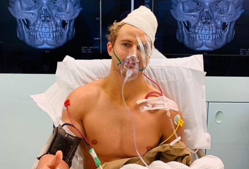 Сэйдж Норткатт перенес 9-часовую операцию после 8 переломов лицевых костей