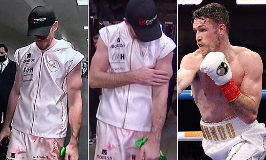 Видео: Смит продемонстрировал травмированную в бою с Альваресом руку